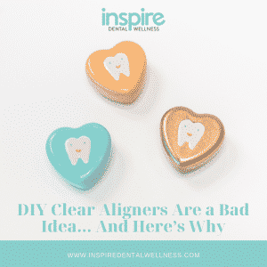 DIY Clear Aligners Blog Graphic