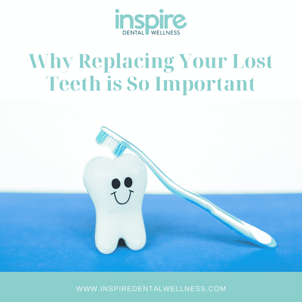 Why Replacing Your Lost Teeth is So Important